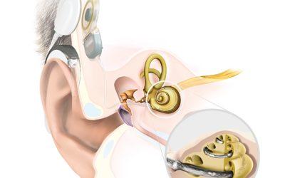 Wie funktioniert ein Cochlea-Implantat (CI)?